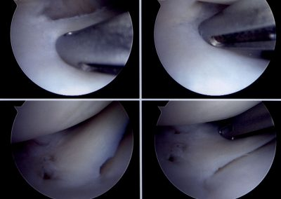ARTHROSCOPY meniscal repair 1