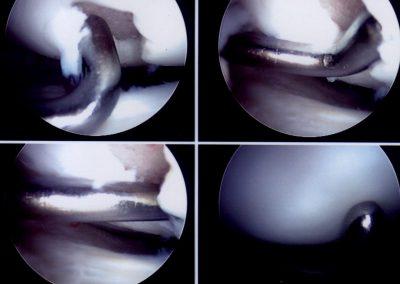 ARTHROSCOPY showing chondral damage knee