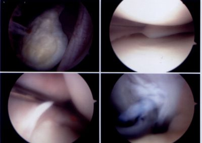 ARTHROSCOPY with loose OCD fragment