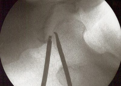 Arthroscopy Hip microfracture