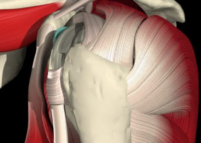 ROTATOR CUFF ACROMION SIDE VIEW